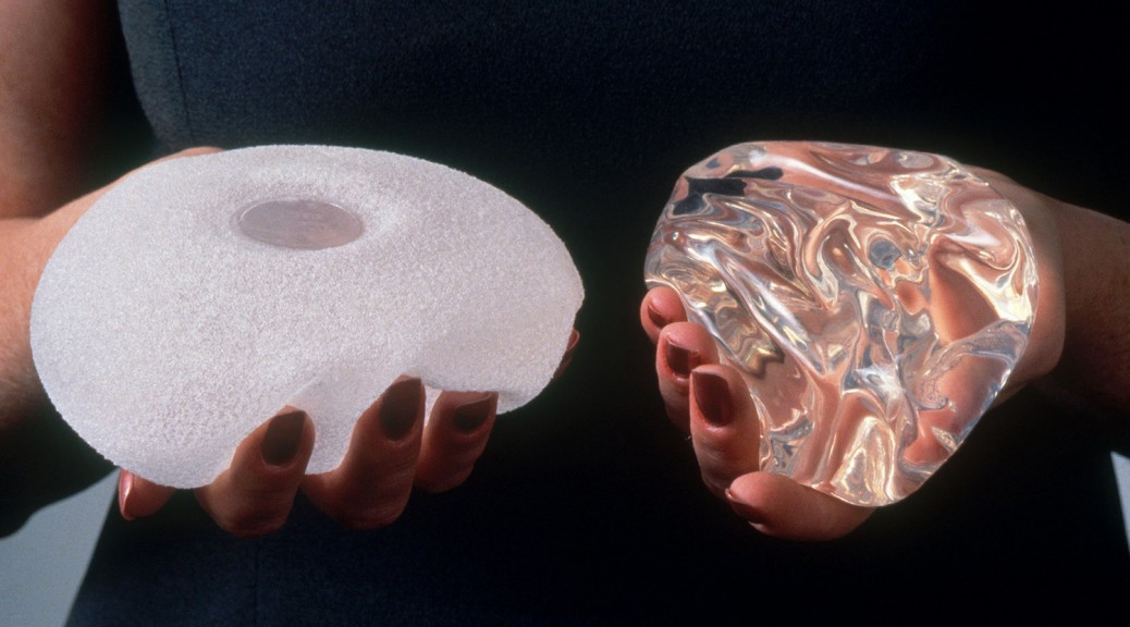 breast-implants-2_custom-b89e01b2a1bf3270259874cab3d5547667be2596-s1600-c85